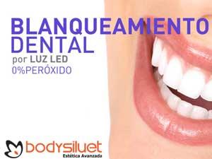 Bodysiluet, pioneros en ofrecer blanqueamiento dental.